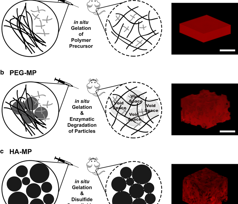 Injectable, Hyaluronic Acid-Based Scaffolds with Macroporous Architecture for Gene Delivery