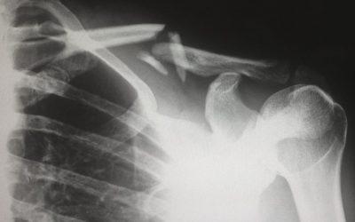 Unlocking mystery behind skeletal aging