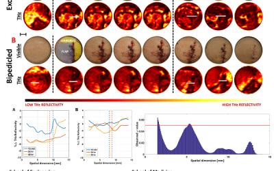 Multidisciplinary team publishes the first study of terahertz imaging based assessment of tissue flap viability