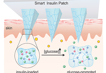 UCLA Researchers Develop Coin-Sized Smart Insulin Patch