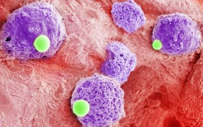Two-cells-in-one combo could be platform to bolster leukemia treatment